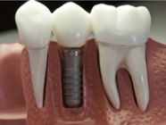 Dental Implants Canning Vale 6155, South of the River in Perth