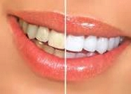 teeth whitening, teeth bleaching, before-after